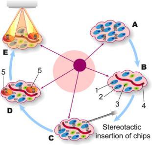 Chip in Tumour
